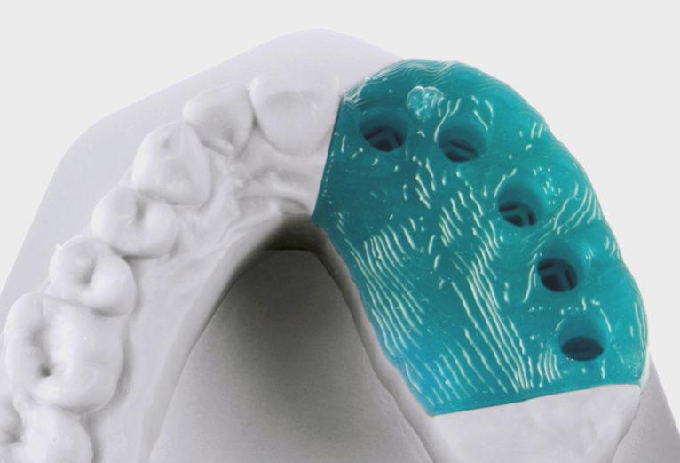 dental silicone