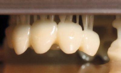 zirconia dental 3d printing